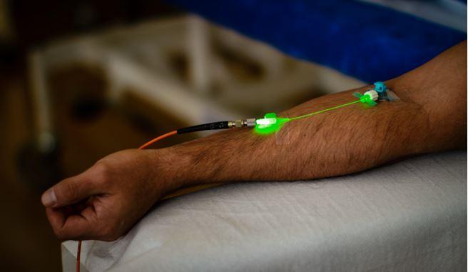 Intravenoese_Lasertherapie_mit_Gruenlaser