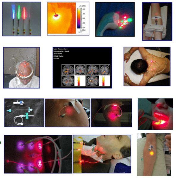 Lasertherapie Üebersicht