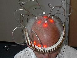 Transkranielle_Lasertherapie